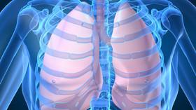 Záhadná plicní nemoc: Větší zabiják, než se myslelo. Počet mrtvých roste - anotační foto