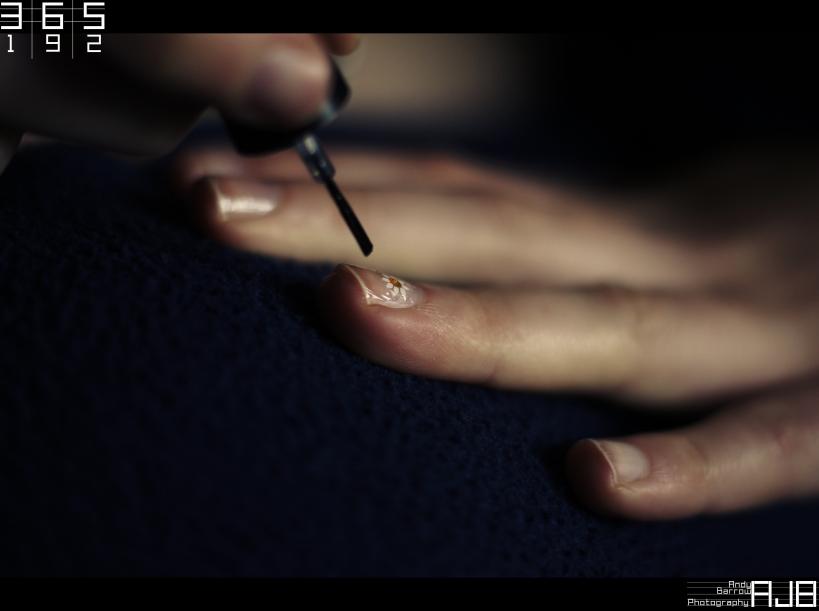 Trápí vás zarostlé nehty? Poradíme, jak na ně - anotační obrázek