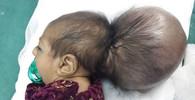 Německo v šoku: Po 15 letech se zde opět narodila siamská dvojčata - anotační foto