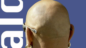 Vědci hlásí, že již brzy budou moci léčit plešatost