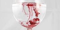 Transfúze krve končily téměř vždy tragicky. Průlom nastal před 200 lety - anotační obrázek