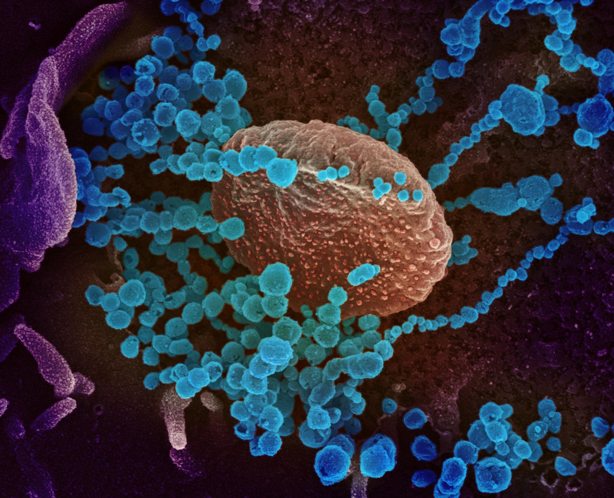 Koronavirus SARS-CoV-2